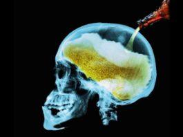 Как потребление алкоголя влияет на ваш мозг