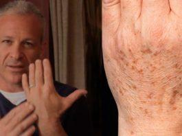 Американский доктор рекомендует: простой трюк быстро устранит пигментные пятна на коже!