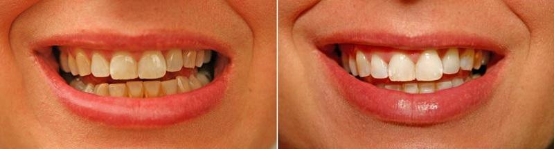 """Результат пошуку зображень за запитом """"Как отбелить зубы в домашних условиях за 3 минуты: 100%-й результат!"""""""