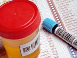 Как предупредить болезни? 10 анализов, которые нужно сдать каждому