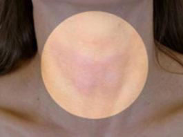 Вот как быстро избавиться от проблем со щитовидной железой