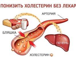 Как понизить уровень холестерина БЕЗ лекарств?