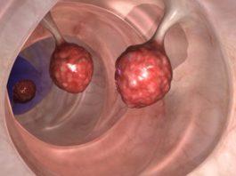 ВРАЧИ в недоумении! Это убивает 93% клеток рака толстой кишки всего за 2 дня!