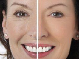 Солкосерил — одно из лучших средств от морщин вокруг глаз! Косметологи негодуют!