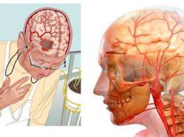 3 самых мощных рецепта для улучшения кровообращения в головном мозге!