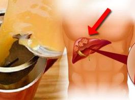 Чай древних императоров: очищает артерии, устраняет вирусы и активизирует кровообращение!