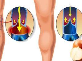 Как избавиться от варикоза и сосудистой сетки на ногах? Легкий способ!