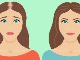 Выпадение волос: 8 причин, когда маски для волос не дают результатов!