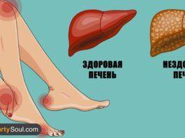 Вот как ваше тело демонстрирует, что ваша печень в опасности