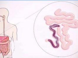 Правильный способ употребления сырого чеснока, чтобы вывести паразитов из вашего тела!