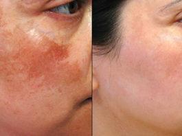 Я очень страдала от пигментных пятен на лице, пока бабушка не рассказала мне об этом способе… Теперь моя кожа чистая даже летом!