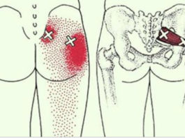 Эти 2 трюка быстро разблокируют седалищный нерв и облегчат боль в течение нескольких минут