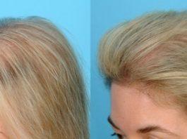Эффективная маска для роста и против выпадения волос