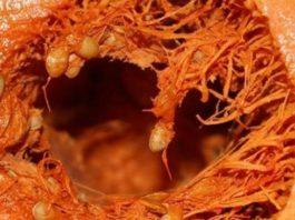 Совет профессора: Тыква вызывает необратимые процессы в организме. Такую информацию нужно знать