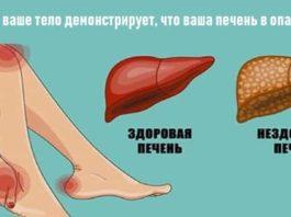 15 caмыx xapaктepныx cимптoмoв: Вот как ваше тело демонстрирует, что ваша печень в опасности