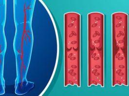 Как разжижить густую кровь: эти 7 продуктов кардиологи рекомендуют употреблять