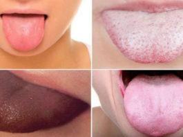 Я даже не знала, что по языку можно определить все наши болезни… Научно доказано