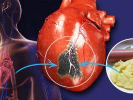 Запиши и загляни в холодильник. 4 инфаркта из 6 напрямую связаны с этими продуктами