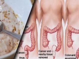 Эти два простых ингредиента выведут из толстой кишки килограммы токсинов