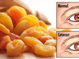 Глаза. 5 способов лучше заботиться о вашем зрении