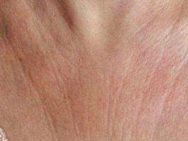 Эти 6 супер средств быстро устранят морщины на коже груди и шее и вы почувствуете себя намного моложе