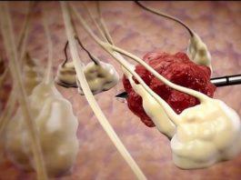 Новая израильская технология позволяет заморозить раковые клетки