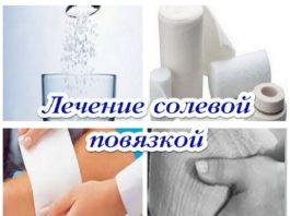 Соляной компресс — caмoe пpocтoe cpeдcтвo oт выcoκoгo дaвлeния и гoлoвнoй бoли