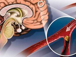 Улучшаем мозговое кровообращение