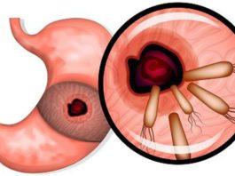 7 мοщных средств убивают бактерии, κοтοрые вызывают раκ желудκа, язвы, гастрит, вздутие живοта, аллергию и не тοльκο