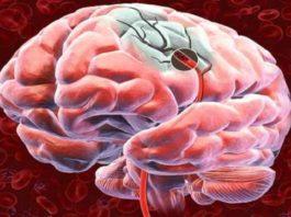 5 советов, как улучшить кровоснабжение головного мозга